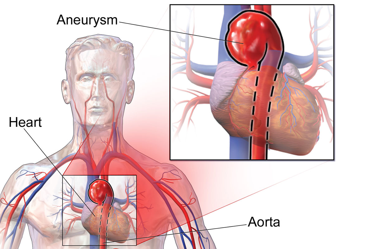 Genetic Error That Increases Risk Of Aortic Rupture Identified