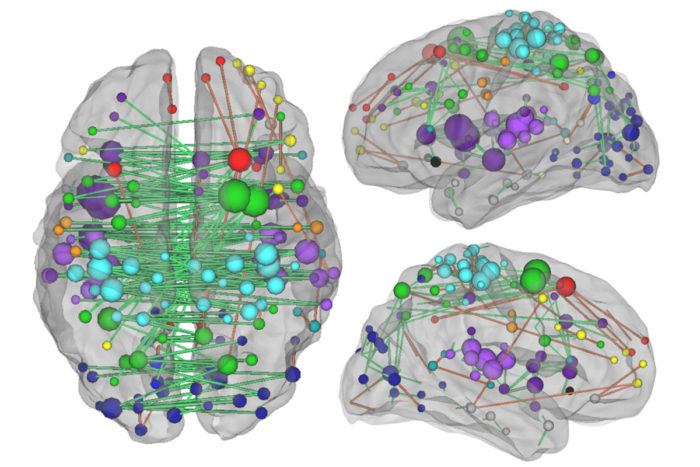 Understanding the network of connections between brain regions — as depicted above — and how they are changed by a stroke, is crucial to understanding how stroke patients heal, according to new research from Washington University School of Medicine in St. Louis.