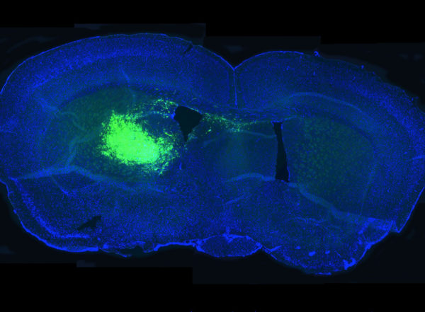 Researchers have shown that a metabolic pathway associated with slowing aging also drives brain cancer. In the image above, cancer stem cells in a mouse brain section glow fluorescent green, allowing researchers to study the effect of inhibiting the pathway on the ability of cancer stem cells to survive and proliferate.