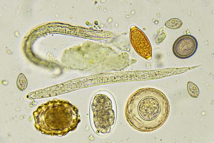 Intestinal Parasites >> Gut Microbes Influence Severity Of Intestinal Parasitic