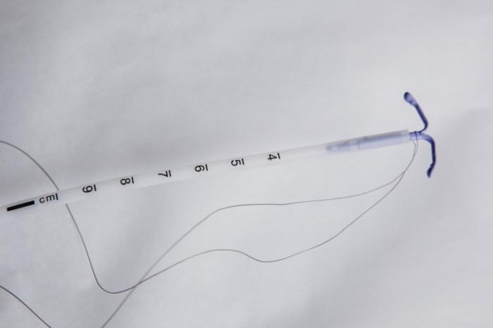 IUD-contraception