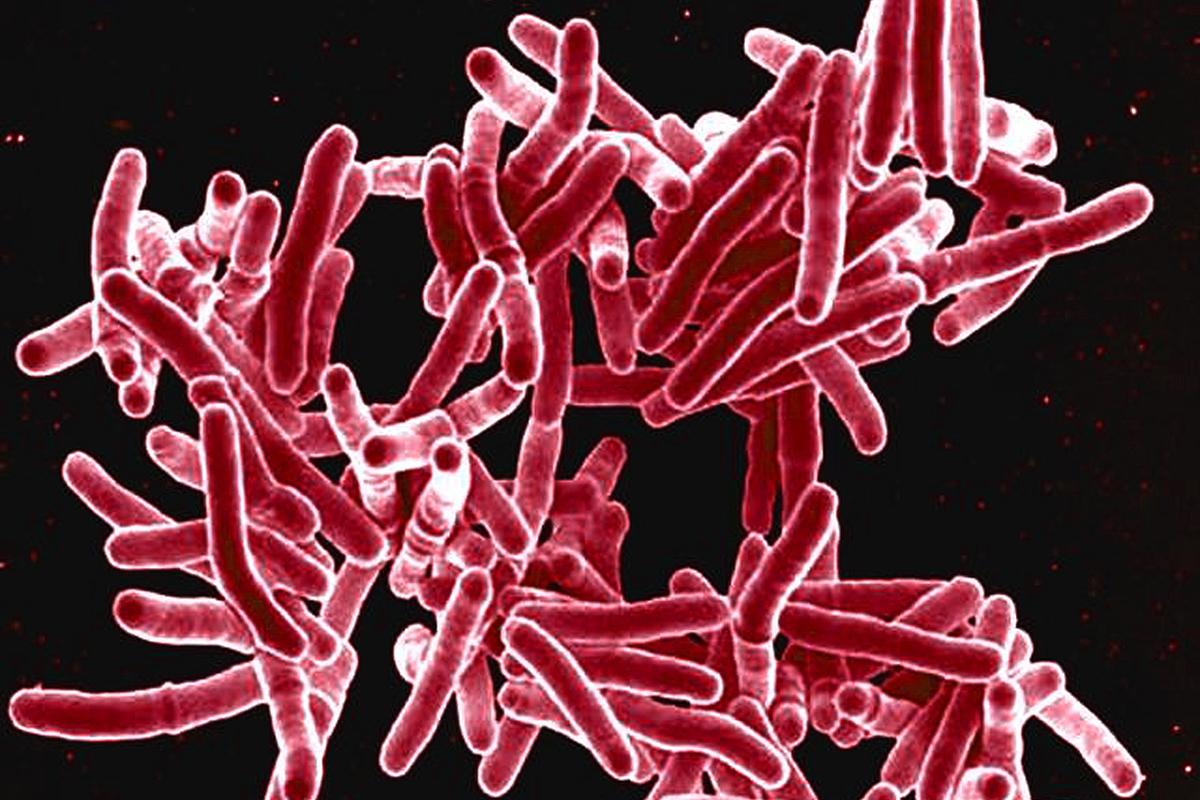 Drug-Resistant Tuberculosis Reversed in Lab
