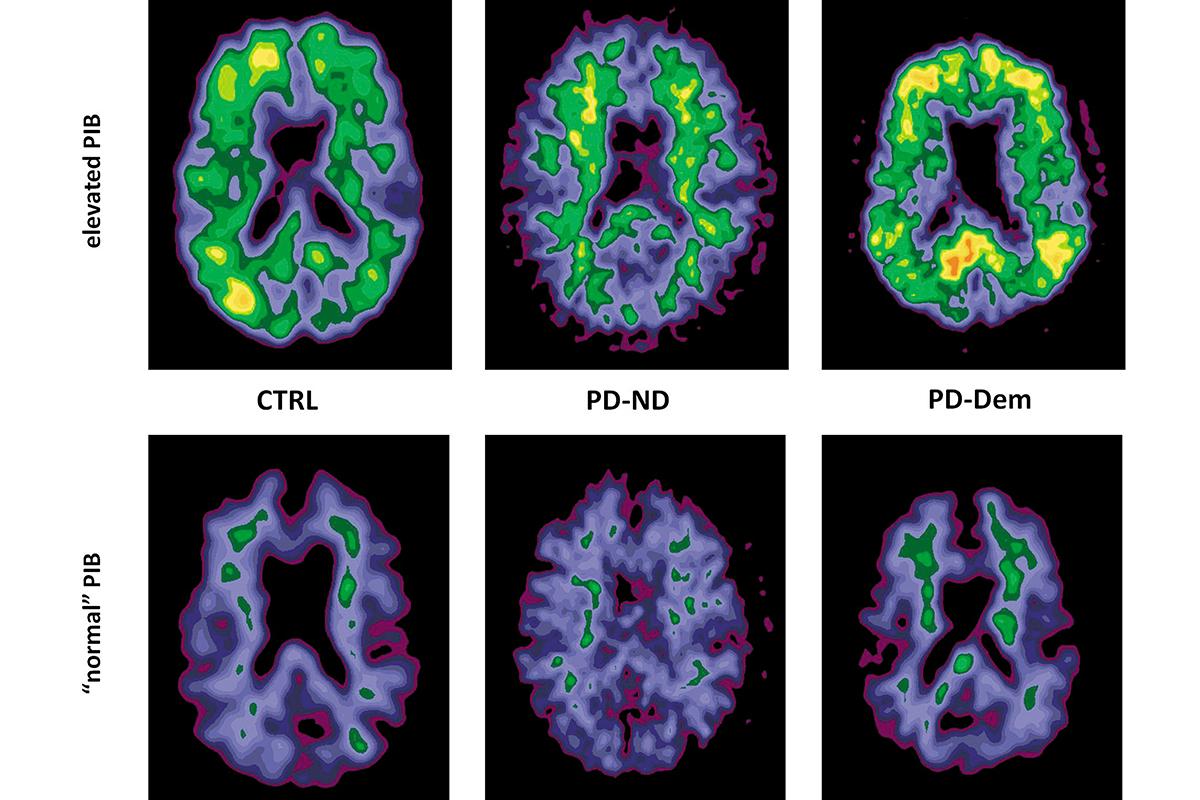 Herbal brain stimulants