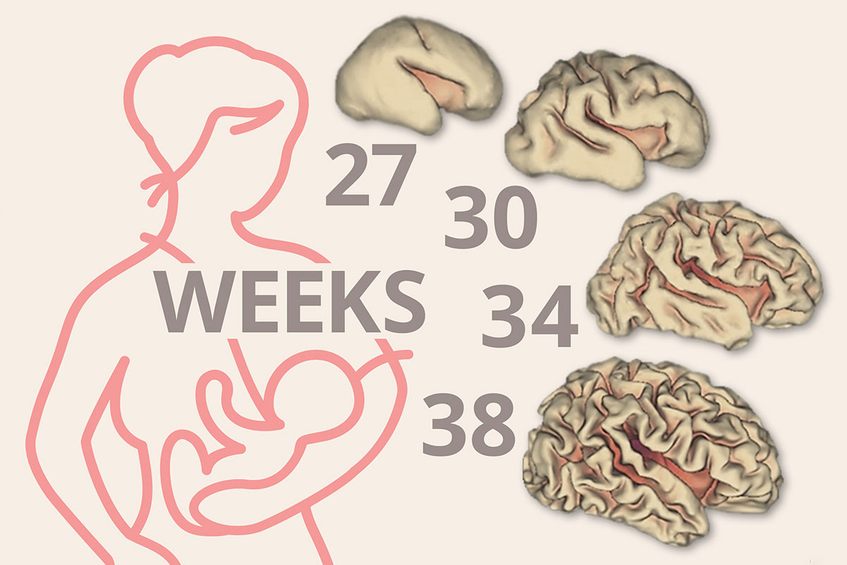 Because babies born prematurely are still developing, they typically have smaller brains than full-term infants. Shown are depictions of the cortical-surface area of the brain at different points in gestation.