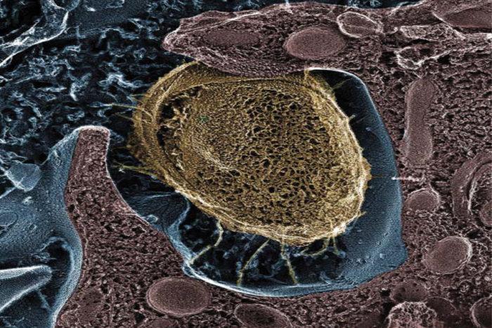 UTI treatment reduces E  coli, may offer alternative to