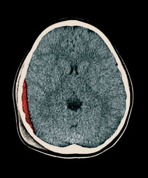 A CT scan shows the brain of a child with mild traumatic brain injury. The red area shows a subdural hematoma — a blood clot located between layers of the protective lining covering the brain (red color added to illustrate hematoma). A new risk scoring system developed by neurosurgeons at Washington University School of Medicine in St. Louis provides guidance on how best to manage such patients.