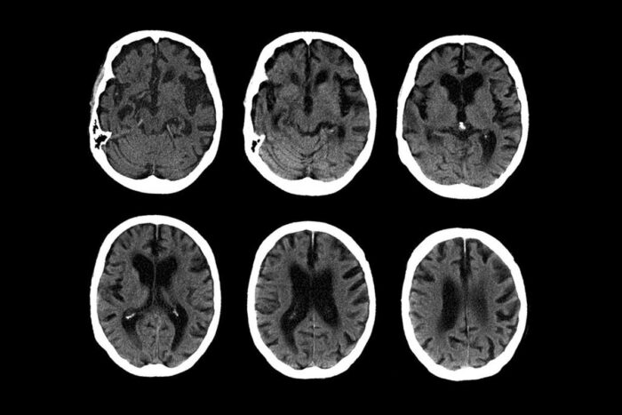 C.T. scans of the brain of a 74-year-old with Alzheimer's disease