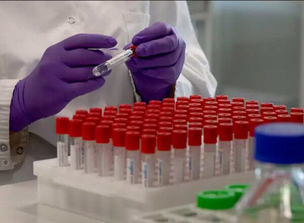 A technician labels a test tube during coronavirus research at a Belgian lab. The quest to thwart the pandemic has led to significant changes in the scientific process.