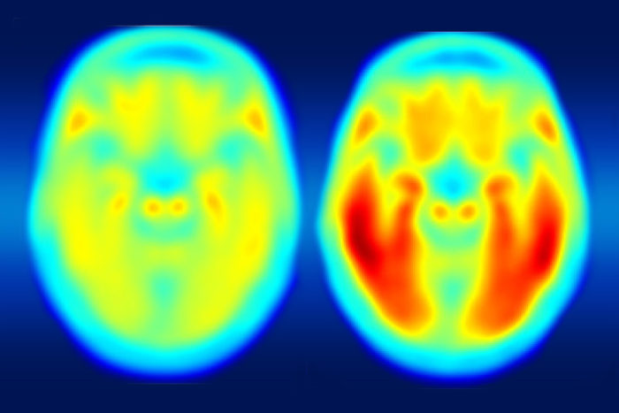 A study using a new PET imaging agent shows that measures of tau protein in the brain more closely track cognitive decline due to Alzheimer's disease compared with long-studied measures of amyloid beta. More red color indicates more tau protein. The image on the left shows the average tau accumulation in the brains of cognitively normal people, averaged over many individuals. The image on the right shows the average amount of tau buildup in the brains of multiple people with mild Alzheimer's symptoms. Scanning multiple individuals shows that the intensity of tau deposits correlates with the severity of cognitive dysfunction.